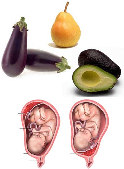 Avocado-Pear-Eggplant Uterus shape