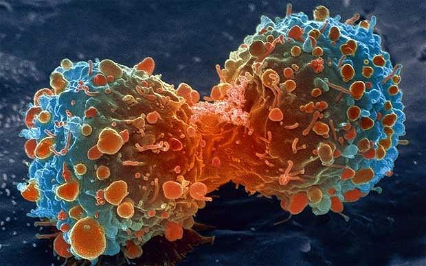 cancer-lambert_2469736b[1]