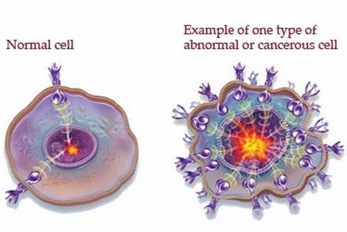 Нормална клетка и ракова клетка... ето това е в състояние да причини психиката на тялото!